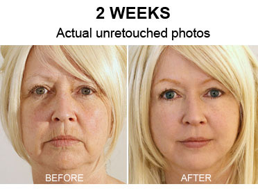 Mom Cut 20 Years in a Week Using This 1 Weird Trick